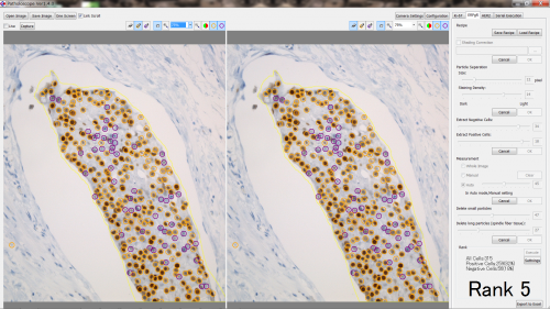 Patholoscope-ERPgR.png