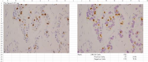 Patholoscope-excel.png