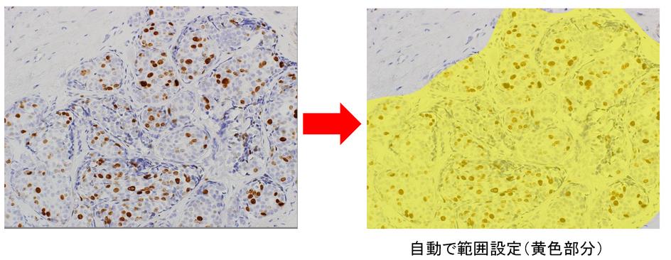 高速細胞カウント_情報3.png